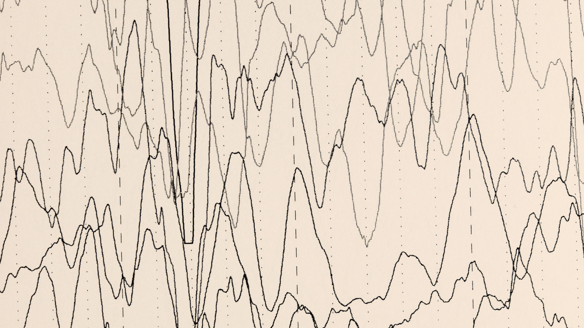 FG Neuro Epilepsia
