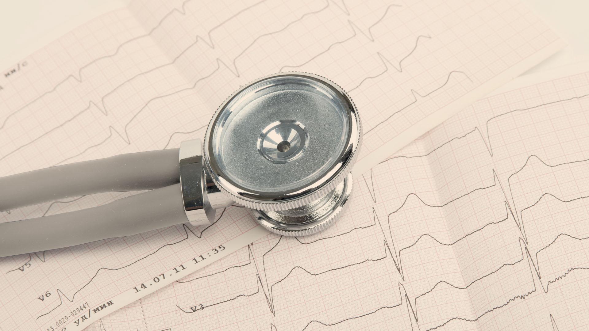 FG Cardio Hipertensión